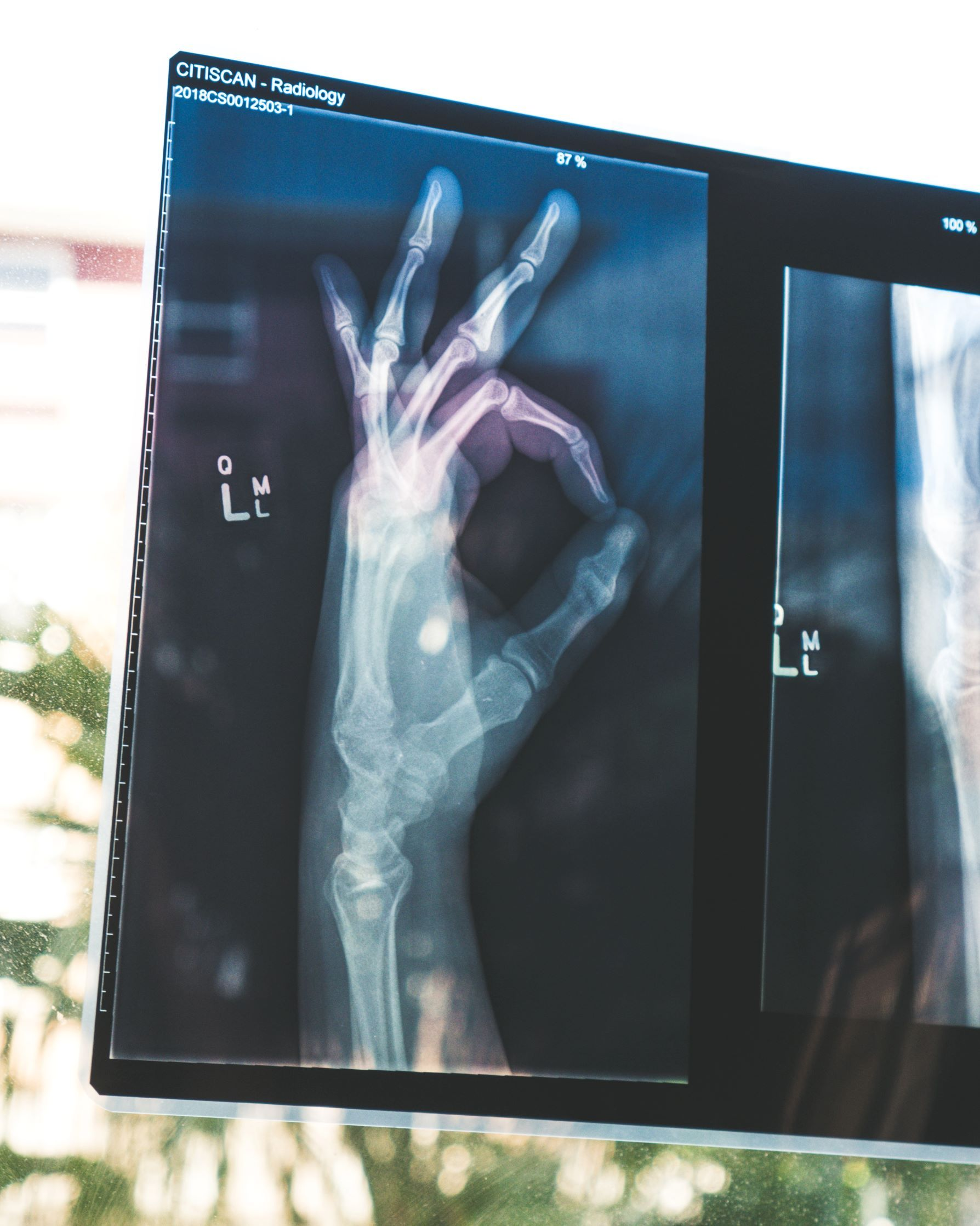 Photo of an X ray of a hand making an ok symbol